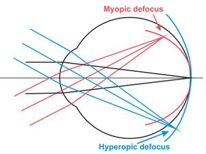 1 pav. Miopinis ir hyperopinis defokusas (www.contactlensupdate.com)